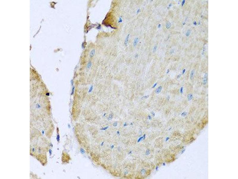 Immunohistochemistry (IHC) image for anti-Transmembrane Protein 173 (TMEM173) antibody (ABIN1875116)