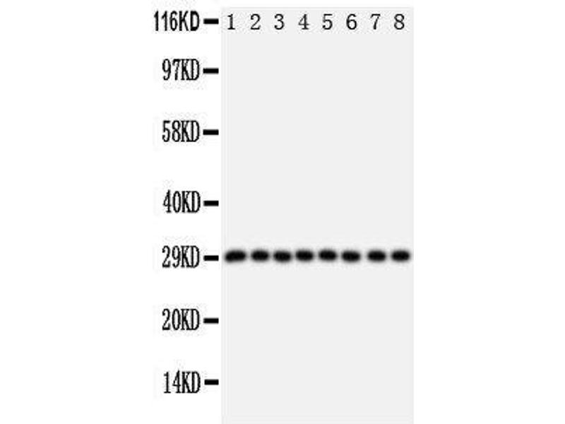 Western Blotting (WB) image for anti-Cytokine Inducible SH2-Containing Protein (CISH) (AA 241-258), (C-Term) antibody (ABIN3044172)