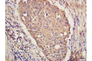 Immunohistochemistry (Paraffin-embedded Sections) (IHC (p)) image for anti-Interferon Regulatory Factor 9 (IRF9) (AA 120-145) antibody (ABIN2177064)