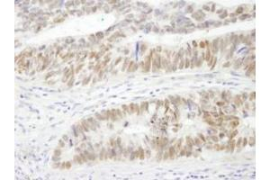 Immunohistochemistry (Paraffin-embedded Sections) (IHC (p)) image for anti-AT Rich Interactive Domain 3A (BRIGHT-Like) (ARID3A) (C-Term) antibody (ABIN151747)
