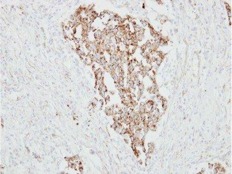 Immunohistochemistry (Paraffin-embedded Sections) (IHC (p)) image for anti-Retinoic Acid Receptor Responder (Tazarotene Induced) 1 (RARRES1) (Center) antibody (ABIN4349390)