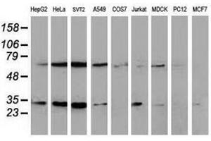 Image no. 4 for anti-Synovial Sarcoma, X Breakpoint 1 (SSX1) antibody (ABIN1501157)