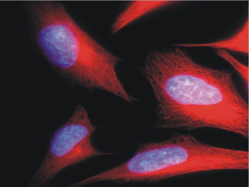 Immunofluorescence (IF) image for anti-alpha Tubulin (TUBA1) antibody (FITC) (ABIN93892)