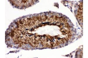 Image no. 1 for anti-GPX4 (Isoforms A/b/c) antibody (ABIN4951230)