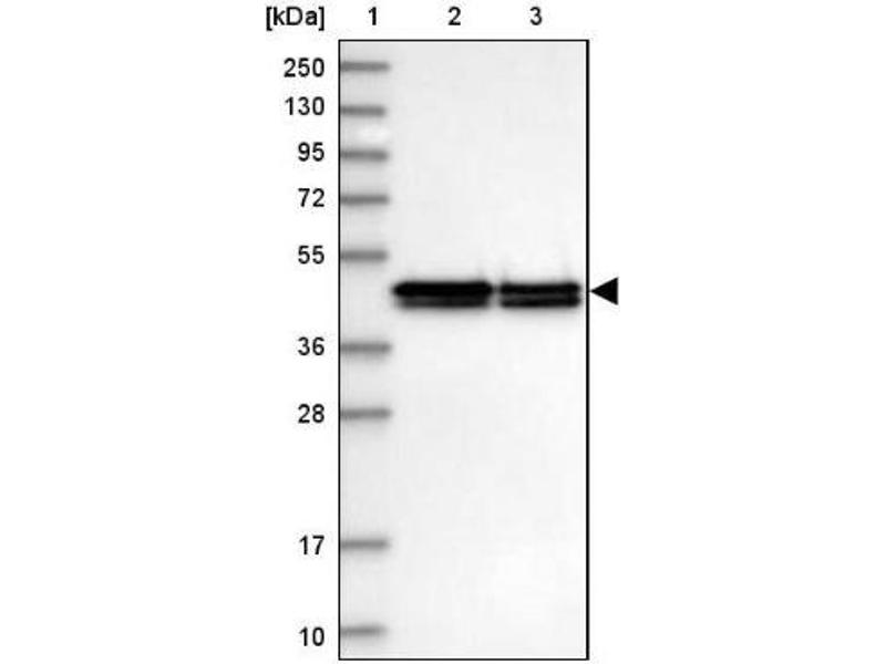 Western Blotting (WB) image for anti-RCN1 抗体 (Reticulocalbin 1, EF-Hand Calcium Binding Domain) (ABIN4349748)