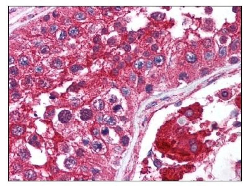 image for anti-Mechanistic Target of Rapamycin (serine/threonine Kinase) (FRAP1) (AA 2440-2457) antibody (ABIN303334)