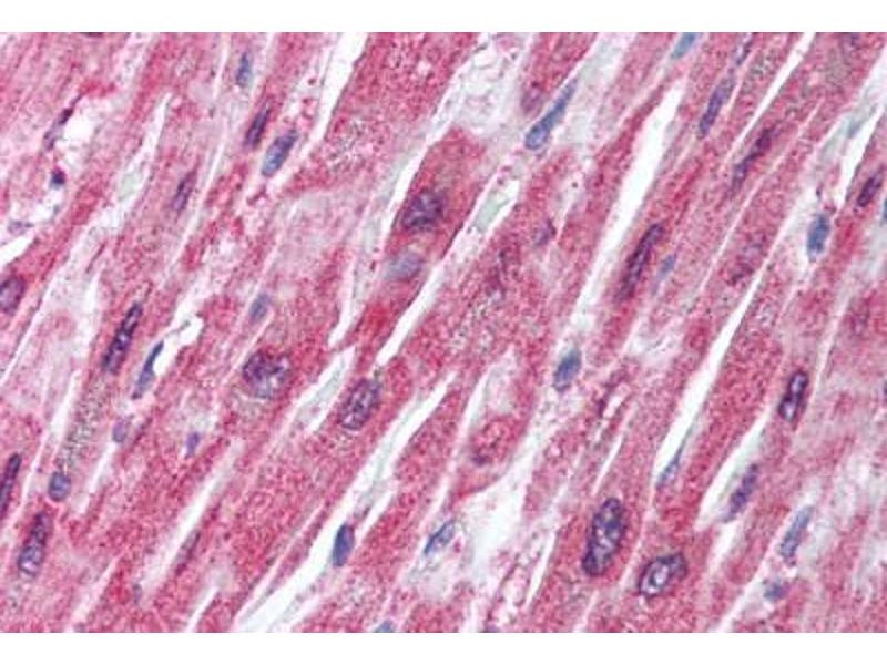 Immunohistochemistry (Paraffin-embedded Sections) (IHC (p)) image for anti-TRAF2 antibody (TNF Receptor-Associated Factor 2) (N-Term) (ABIN214009)