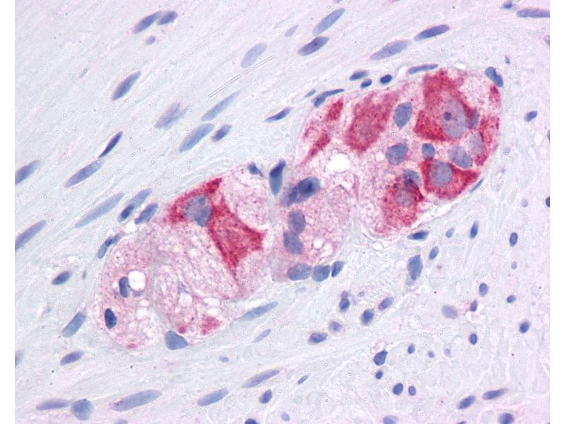 Immunohistochemistry (IHC) image for anti-Heat Shock Protein 90kDa alpha (Cytosolic), Class A Member 1 (HSP90AA1) (AA 108-157) antibody (ABIN6745698)