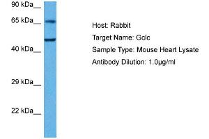Image no. 4 for anti-Glutamate-Cysteine Ligase, Catalytic Subunit (GCLC) (N-Term) antibody (ABIN2774078)