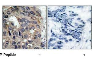 Image no. 1 for anti-Nuclear Receptor Coactivator 1 (NCOA1) (pTyr529) antibody (ABIN196876)