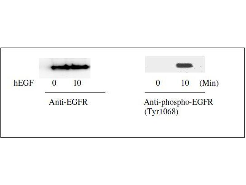 Western Blotting (WB) image for Epidermal Growth Factor Receptor (EGFR) ELISA Kit (ABIN1981829)
