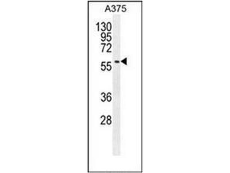 Western Blotting (WB) image for anti-SPDYE3 antibody (Speedy Homolog E3 (Xenopus Laevis)) (AA 85-114) (ABIN954916)