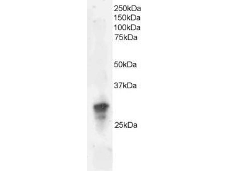 Western Blotting (WB) image for anti-GRB2 antibody (Growth Factor Receptor-Bound Protein 2) (ABIN2435838)