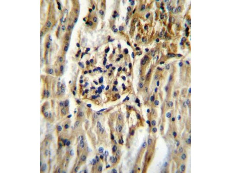 Immunohistochemistry (IHC) image for anti-Cytochrome P450, Family 11, Subfamily B, Polypeptide 2 (CYP11B2) antibody (ABIN2996082)