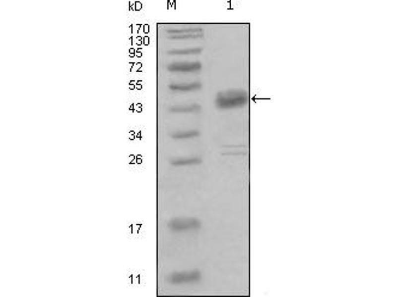 Western Blotting (WB) image for anti-MCK10 antibody (Discoidin Domain Receptor Family, Member 1) (AA 602-681) (ABIN614409)