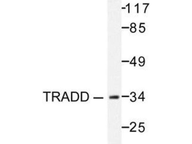 Western Blotting (WB) image for anti-TNFRSF1A-Associated Via Death Domain (TRADD) antibody (ABIN407974)