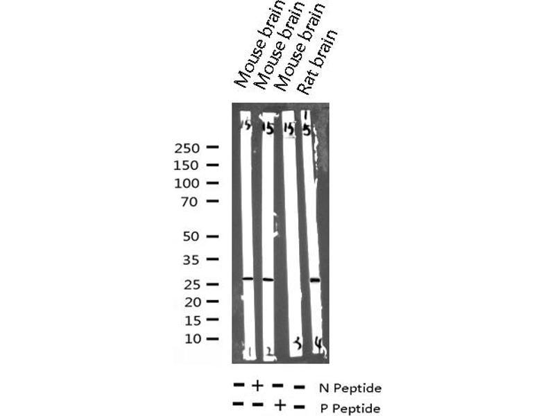 Western Blotting (WB) image for anti-Cyclin-Dependent Kinase Inhibitor 1B (p27, Kip1) (CDKN1B) (pThr187) antibody (ABIN6256493)