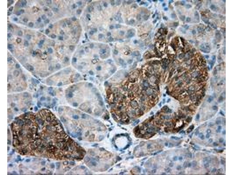 Immunohistochemistry (IHC) image for anti-TUBA8 Antikörper (Tubulin, alpha 8) (ABIN2453758)