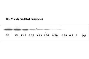Image no. 3 for Signal Transducer and Activator of Transcription 1, 91kDa (STAT1) ELISA Kit (ABIN625244)