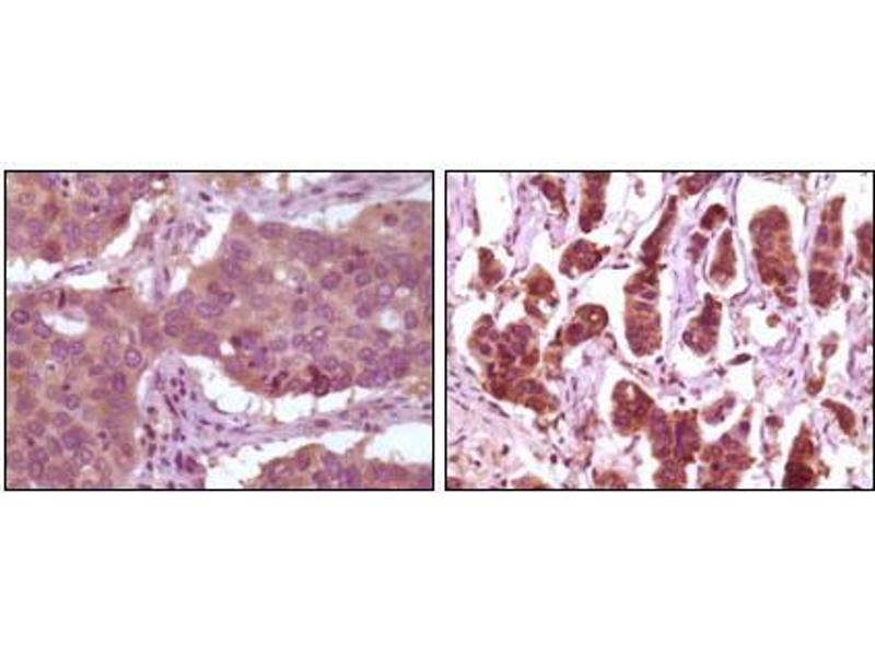 Immunohistochemistry (IHC) image for anti-Mitogen-Activated Protein Kinase 1 (MAPK1) antibody (ABIN1724654)