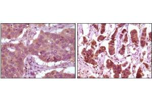 Immunohistochemistry (IHC) image for anti-ERK2 antibody (Mitogen-Activated Protein Kinase 1) (ABIN1724654)