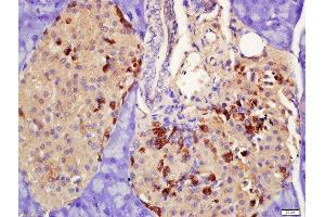 Immunohistochemistry (Paraffin-embedded Sections) (IHC (p)) image for anti-Prolactin Receptor antibody (PRLR) (AA 270-305) (ABIN1387937)
