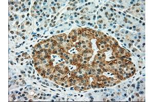 Immunohistochemistry (IHC) image for anti-TYRO3 antibody (TYRO3 Protein Tyrosine Kinase) (ABIN2452433)