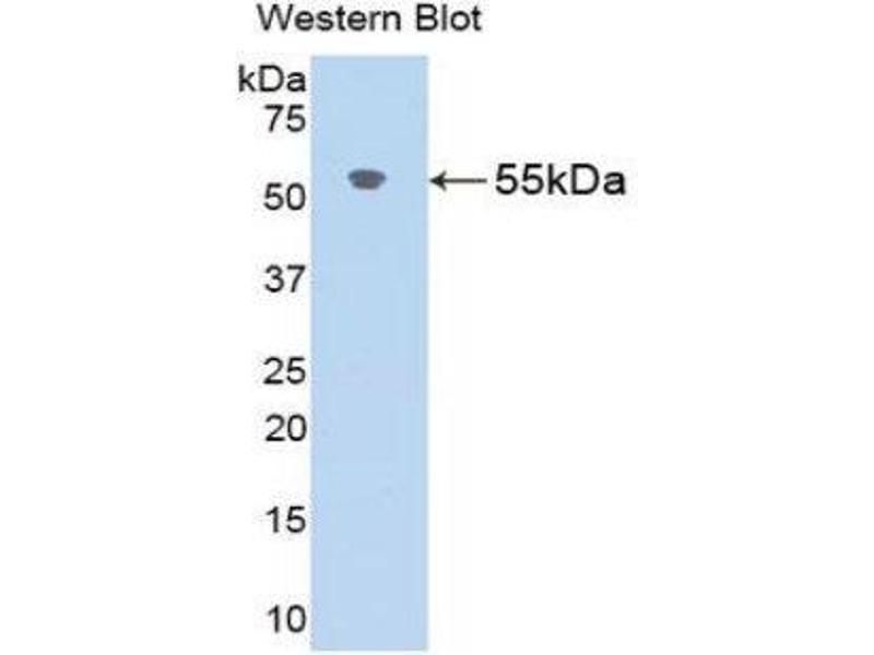 Western Blotting (WB) image for anti-Angiotensinogen (serpin Peptidase Inhibitor, Clade A, Member 8) (AGT) (AA 25-477) antibody (ABIN1173620)