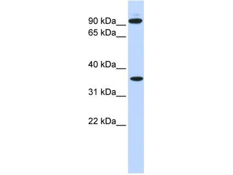Western Blotting (WB) image for anti-Exostosin 2 (EXT2) (N-Term) antibody (ABIN2781795)