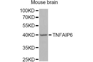Image no. 1 for anti-Tumor Necrosis Factor-Inducible Protein 6 (TNFAIP6) antibody (ABIN6570428)