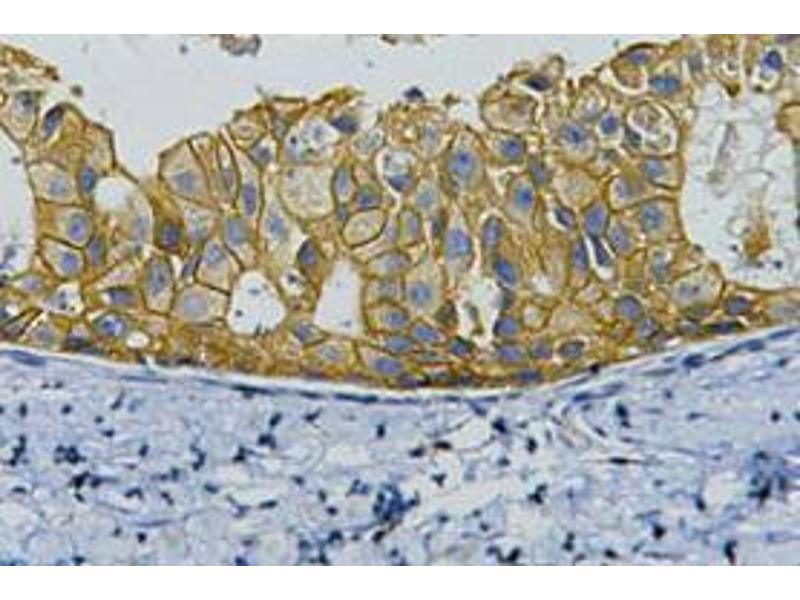 Immunohistochemistry (IHC) image for anti-V-Erb-B2 erythroblastic Leukemia Viral Oncogene Homolog 2, Neuro/glioblastoma Derived Oncogene Homolog (Avian) (ERBB2) antibody (ABIN3188001)