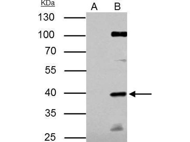 Immunoprecipitation (IP) image for anti-E2F Transcription Factor 1 (E2F1) (Center) antibody (ABIN2854981)