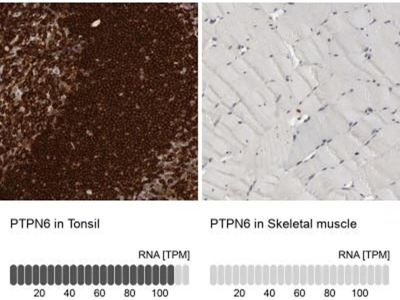 Immunohistochemistry (Paraffin-embedded Sections) (IHC (p)) image for anti-Protein-tyrosine Phosphatase 1C (PTPN6) antibody (ABIN4348608)