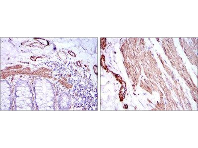 Immunohistochemistry (IHC) image for anti-Actin, alpha 2, Smooth Muscle, Aorta (ACTA2) antibody (ABIN1845399)