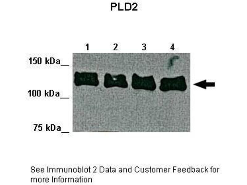 Western Blotting (WB) image for anti-Phospholipase D2 antibody (PLD2) (Middle Region) (ABIN2777719)