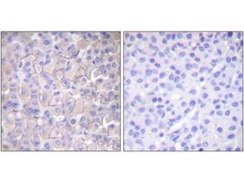 Immunohistochemistry (IHC) image for anti-Epidermal Growth Factor Receptor (EGFR) (AA 661-710), (pThr693) antibody (ABIN1531178)