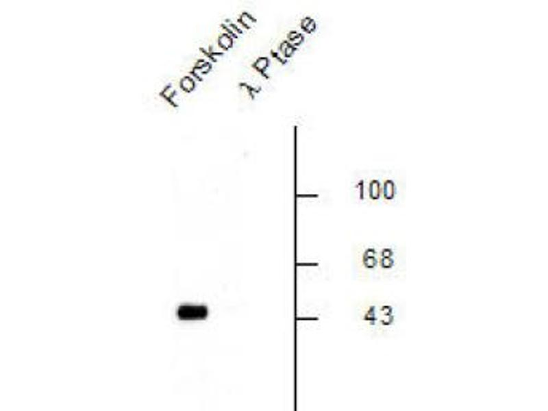 Western Blotting (WB) image for anti-CREB1 antibody (CAMP Responsive Element Binding Protein 1) (pSer133) (ABIN2441146)