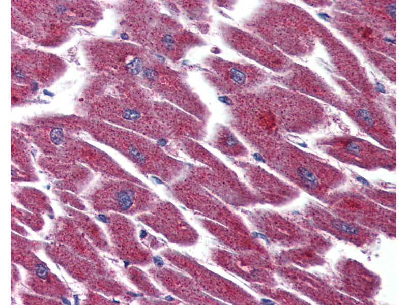 Immunohistochemistry (IHC) image for anti-Lysophosphatidic Acid Receptor 3 (LPAR3) (Internal Region) antibody (ABIN399993)