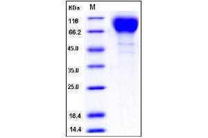 Image no. 1 for Gp120 (Gp120) (AA 29-503), (Extracellular Domain) protein (His tag) (ABIN2650304)