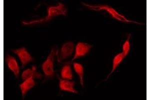 Image no. 4 for anti-Transforming, Acidic Coiled-Coil Containing Protein 1 (TACC1) antibody (ABIN6265428)