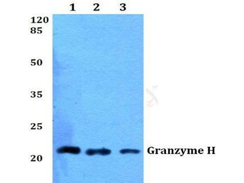 Image no. 2 for anti-Granzyme H (Cathepsin G-Like 2, Protein H-CCPX) (GZMH) antibody (ABIN498458)