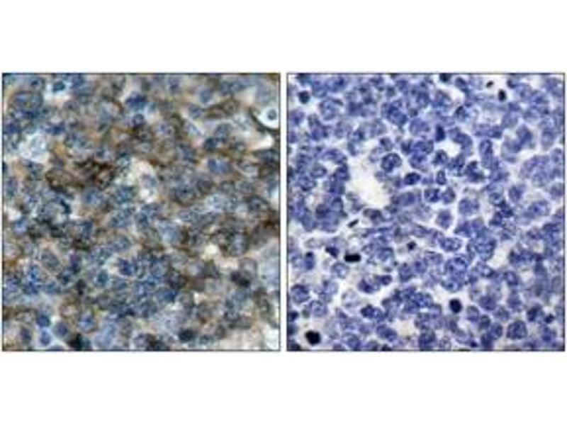 Immunohistochemistry (IHC) image for anti-Vasodilator-Stimulated phosphoprotein (VASP) (AA 124-173), (pSer157) antibody (ABIN1531995)