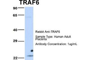 Image no. 1 for anti-TNF Receptor-Associated Factor 6 (TRAF6) (Middle Region) antibody (ABIN2779305)