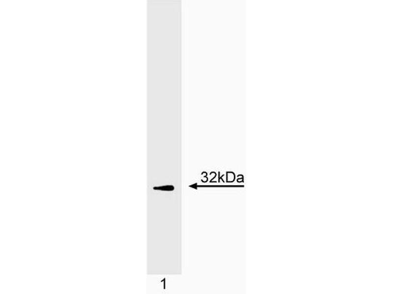 Western Blotting (WB) image for anti-CD247 antibody (CD247 Molecule) (C-Term) (ABIN967446)