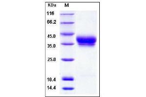 Image no. 1 for Bone Marrow Stromal Cell Antigen 1 (BST1) (AA 1-292) protein (His tag) (ABIN2001993)