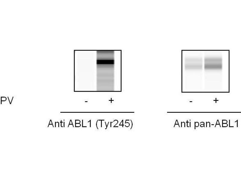 Image no. 1 for C-Abl Oncogene 1, Non-Receptor tyrosine Kinase (ABL1) ELISA Kit (ABIN6730567)