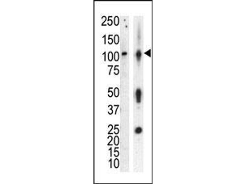 Western Blotting (WB) image for anti-Protein Kinase D3 (PRKD3) (AA 352-384) antibody (ABIN391014)