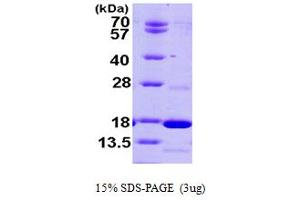 Image no. 1 for phosphodiesterase 6D, CGMP-Specific, Rod, delta (PDE6D) (AA 1-150) protein (His tag) (ABIN667785)