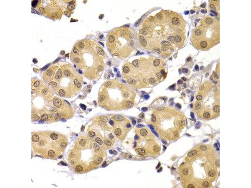 Immunohistochemistry (IHC) image for anti-SMT3 Suppressor of Mif Two 3 Homolog 1 (S. Cerevisiae) (SUMO1) antibody (ABIN1874993)