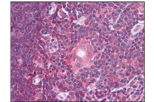 Image no. 2 for anti-Gem (Nuclear Organelle) Associated Protein 2 (GEMIN2) (C-Term) antibody (ABIN784069)